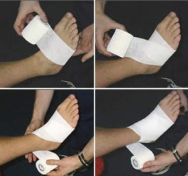 Entorse de la cheville - bandages