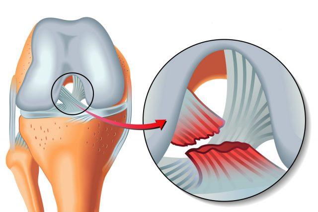Rupture des ligaments croisés : symptômes : schéma