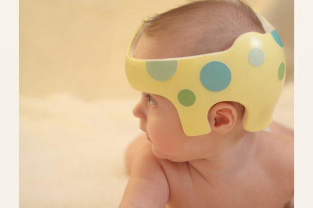 Syndrome de la tête plate : casque