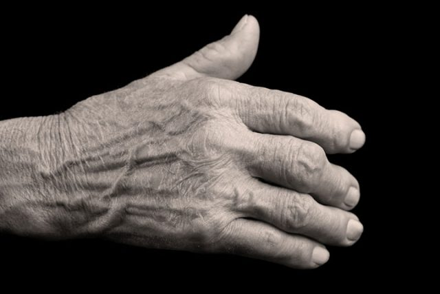 Affections rhumatismales inflammatoires et physiothérapie: Pratique fondée sur des données probantes