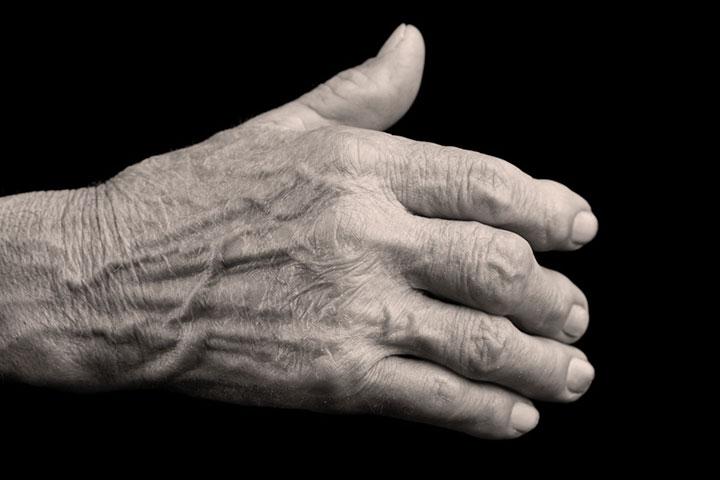 Formation OPPQ-Affections rhumatismales inflammatoires et physiothérapie: Pratique fondée sur des données probantes