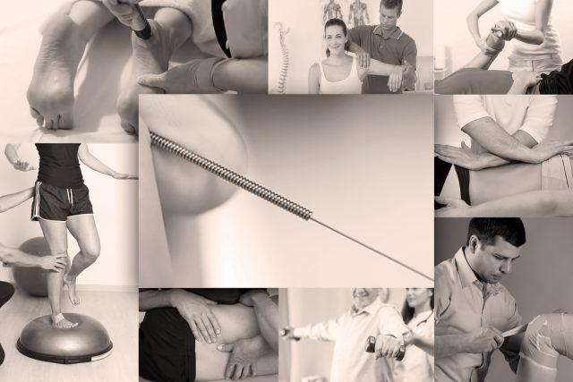 Puncture physiothérapique avec aiguilles séches: intégration clinique