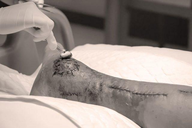 Soins de plaies: évaluation, prévention et traitements de base pour l'intervention du thérapeute en réadaptation physique